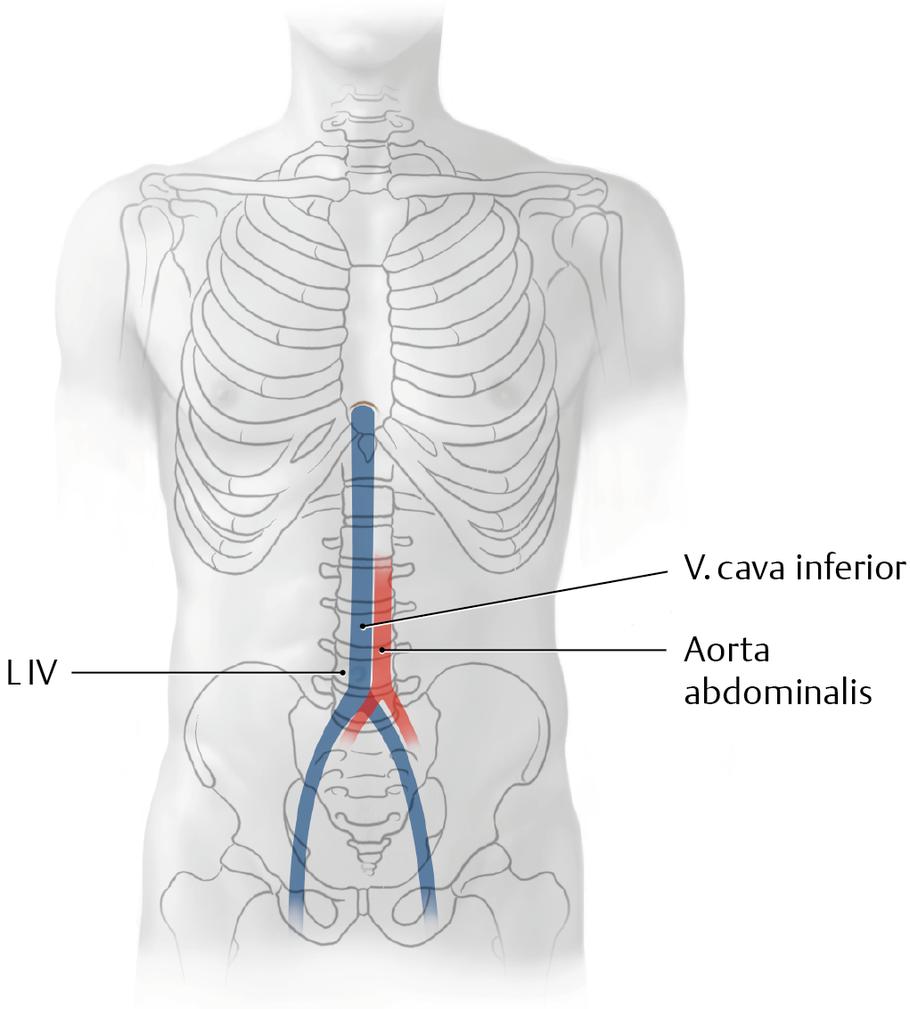 Vena Cava Inferior Untere Hohlvene Via Medici Leichter Lernen