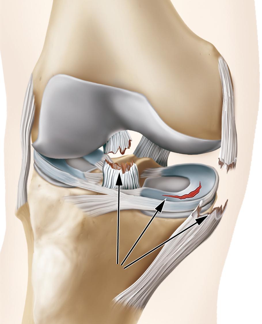 Bandverletzungen am Knie - via medici